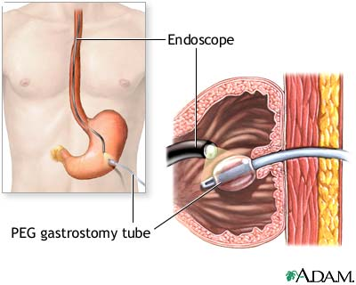 gastrostomy-tube-placement